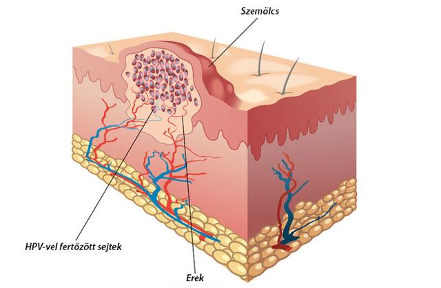 a helminthiasis terhes nőknél történő kezelése rezisztens papilloma vírus